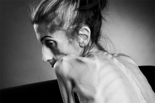 Анорексия болезнь или приговор