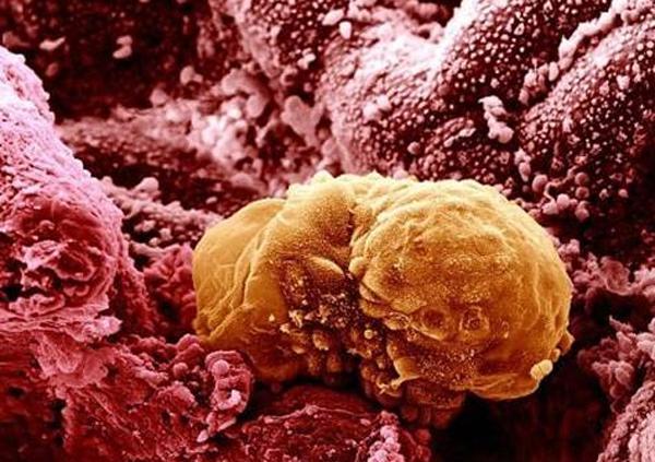Яйцеклетка прикрепленная к стенке матки