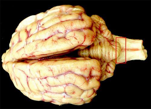 Энцефалопатия — что необходимо знать о болезни?