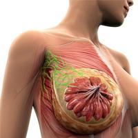Воспаление протока молочной железы