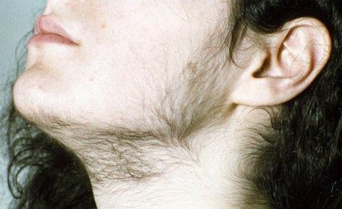 Гирсутизм или повышенная волосатость у женщин