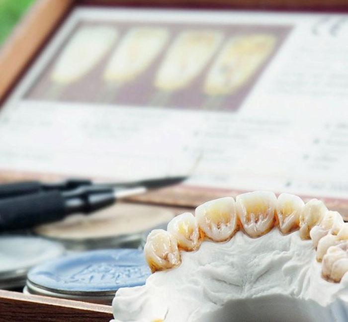 Уход и эксплуатация за имплантированными зубами