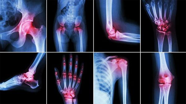 Как выбрать клиники для проведения МРТ суставов?