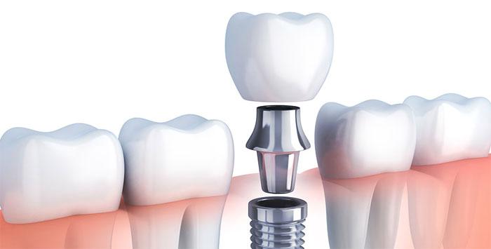 Имплантация для красивой улыбки от Арт Стоматология