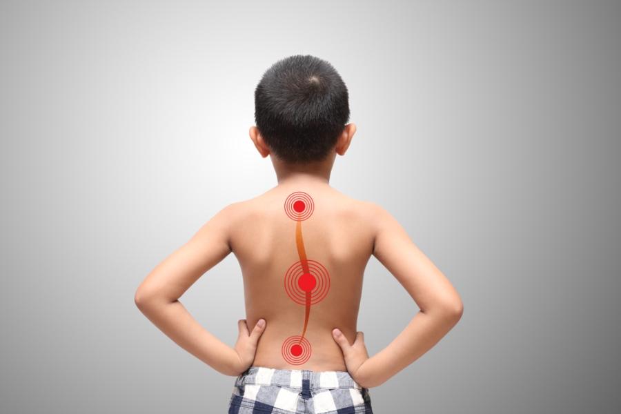 Дефекты осанки у детей: как обнаружить вовремя, упражнения, профилактика
